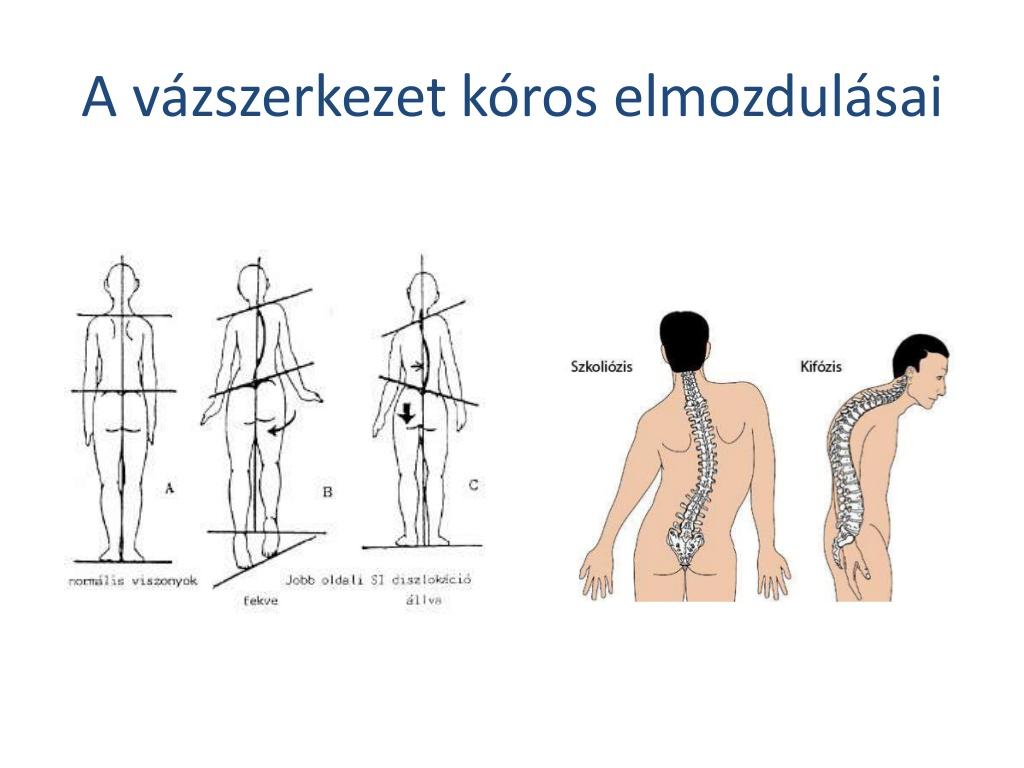 manulterpia-npi-csontkovcsols-3-1024