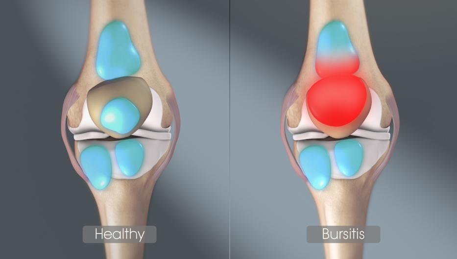 vállízületek osteoarthrosis fájdalma a karban tornaterem ízületi fájdalom