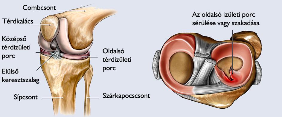a térd belső oldalsó ínszalagjának sérülései)